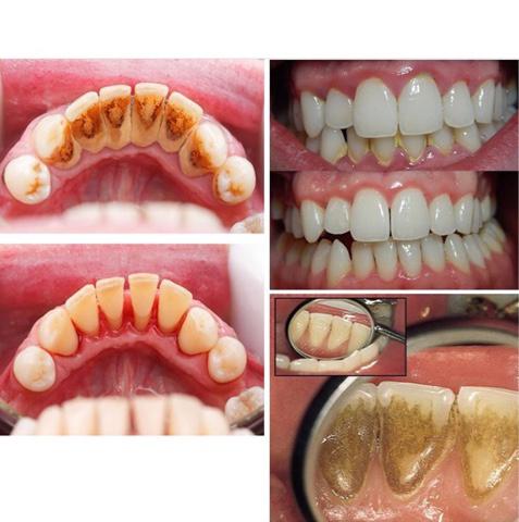 В услугу чистка зубов
