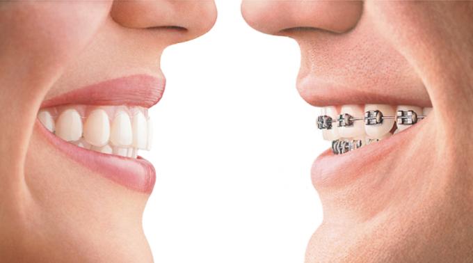 etapy-razvitija-ortodontii