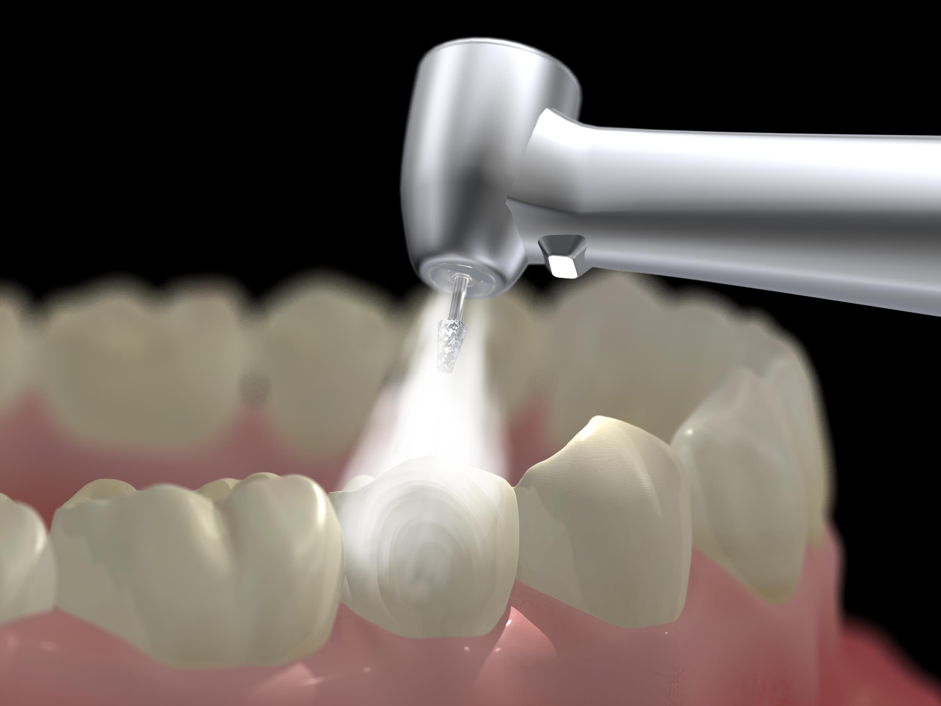 Зубные пломбы позволят зубам самовосстанавливаться