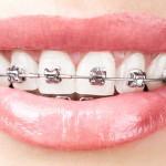 Брекеты могут быть опасны для здоровья зубов и десен детей