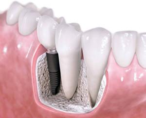 имплантация зубов в Стомусе