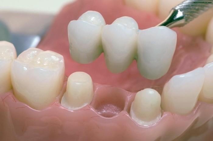 Протезирование зубов в Стомусе