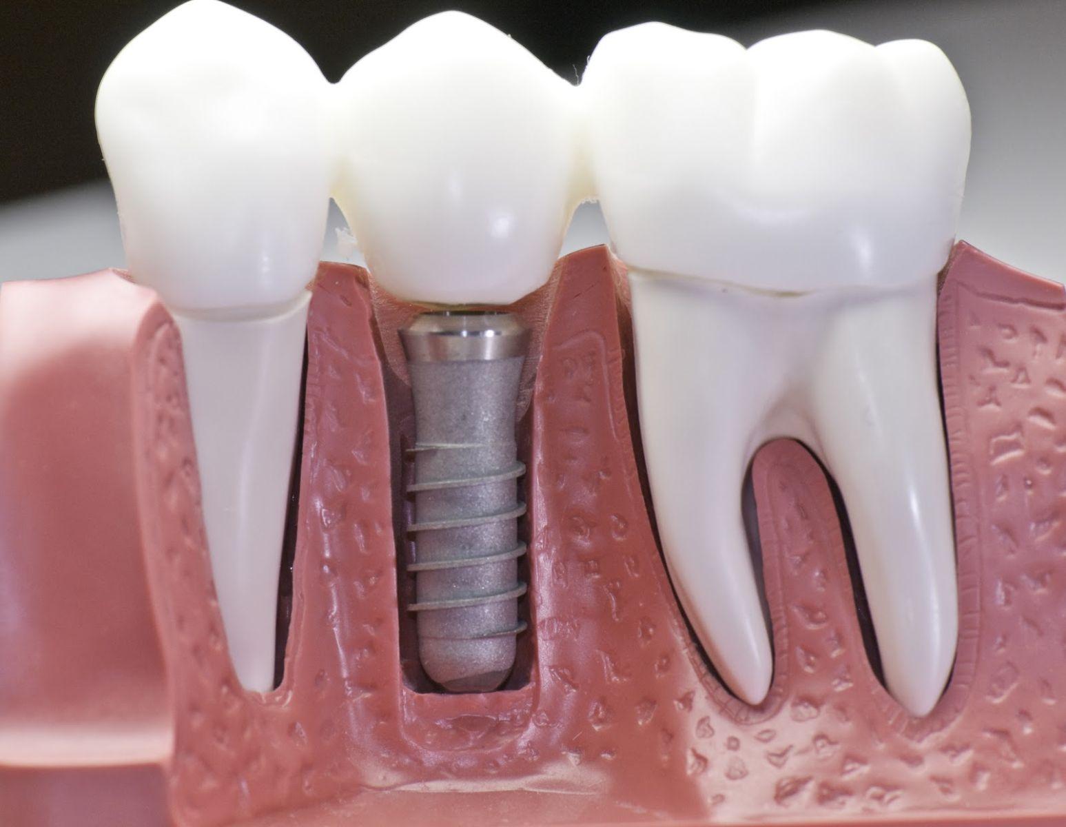 Что будет, если затягивать с протезированием зубов