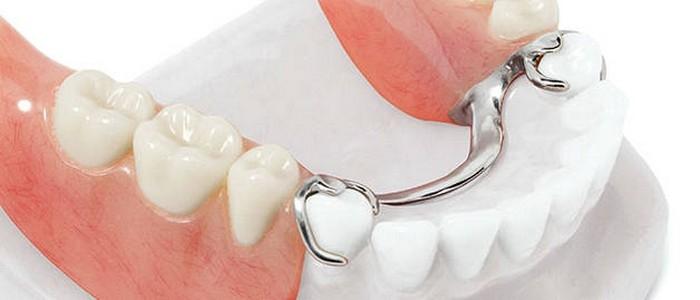 Что такое бюгельное протезирование зубов