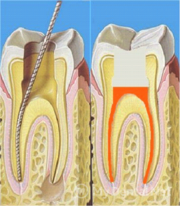 lechenie-pulpitaperiodontita