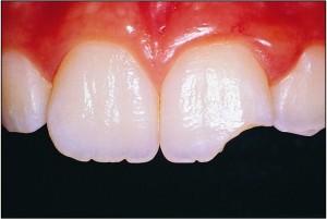 travma-zuba