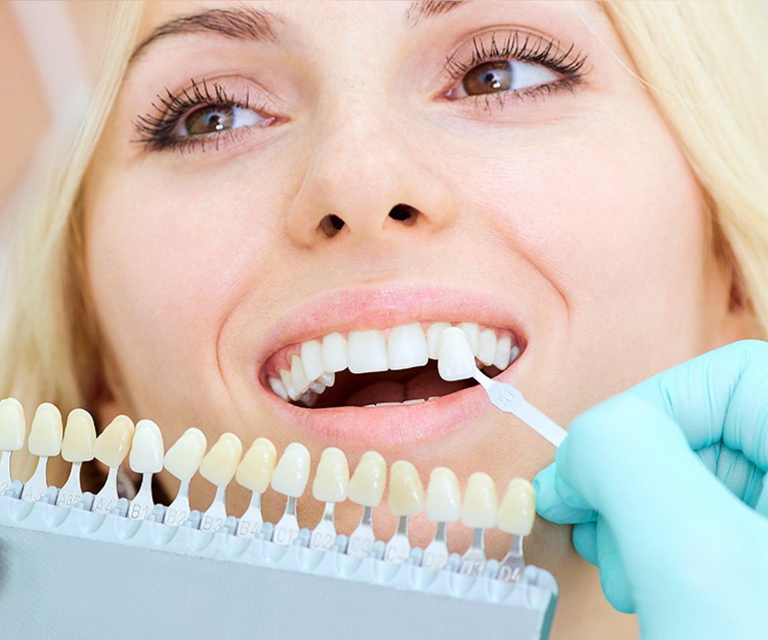 Эстетическая стоматология. Сущность и преимущества!