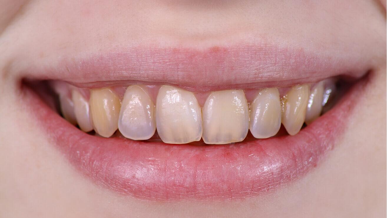 Эрозия зубной эмали. Причины и лечение
