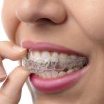 Помогают ли ортодонтические каппы
