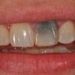 Почернение зубов. Причины и лечение