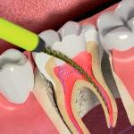 Удаление зубного нерва: показания и описание процедуры