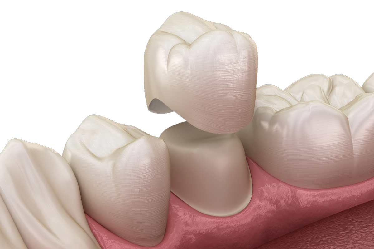 Что такое зубные коронки и когда они ставятся?